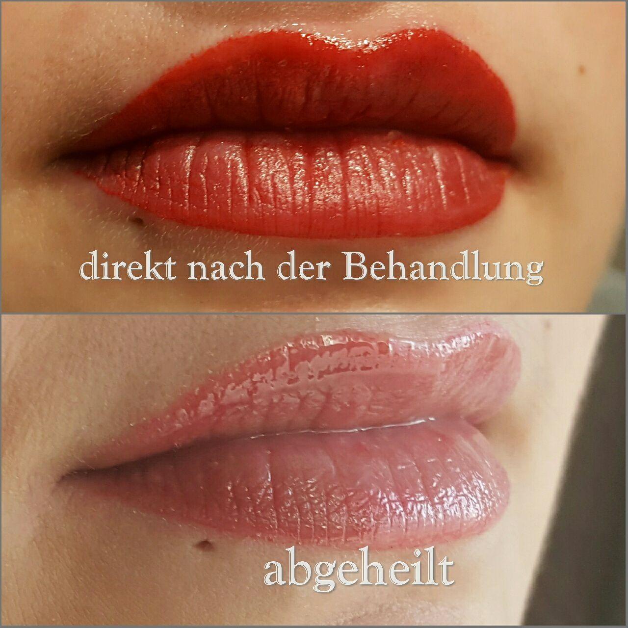 Geliebte Lippen Pigmentierung Hinweise vor und nach der Behandlung #YC_79